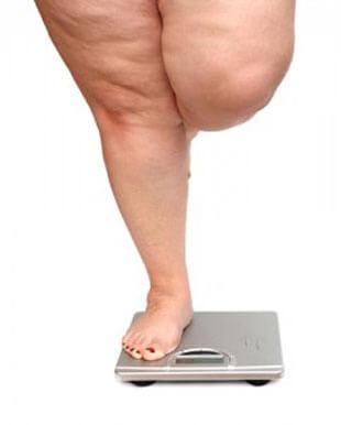 obesidad-241x300